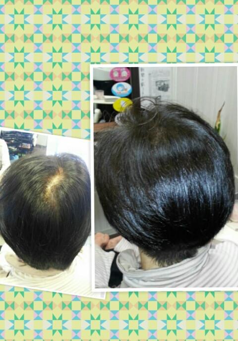 特殊技術・髪の毛を増やす!