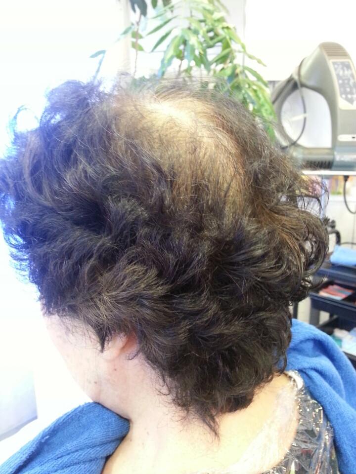 秋は抜け毛の季節・薄毛抜け毛のホームケア