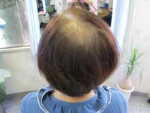 抜け毛の予防