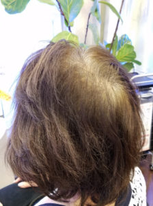 頻繁に白髪染めをする人は気を付けてください。